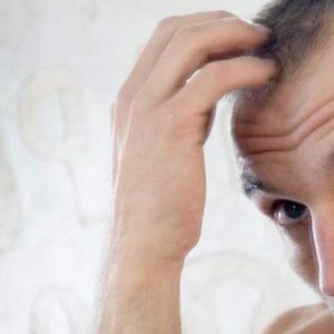 Problemi di capelli